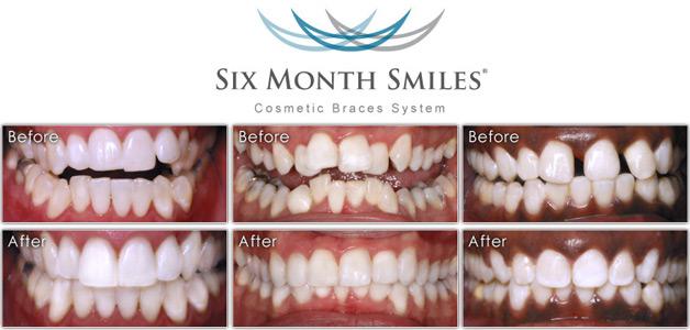 Six Months Smiles | Quick Braces CT | Hartford Braces | West ...